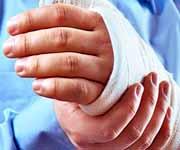 восстановить ногу или руку после перелома