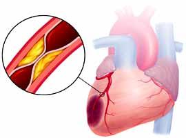инфаркт миокарда и его причины